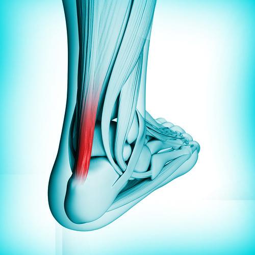 tendinite d'Achilles clinique podiatrique beauport