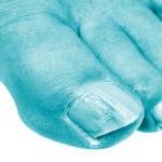 CHAMPIGNONS ONGLE clinique podiatrique beauport