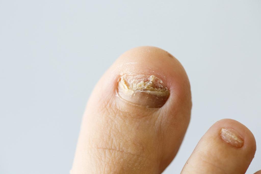 mycose des ongles clinique podiatrique beauport